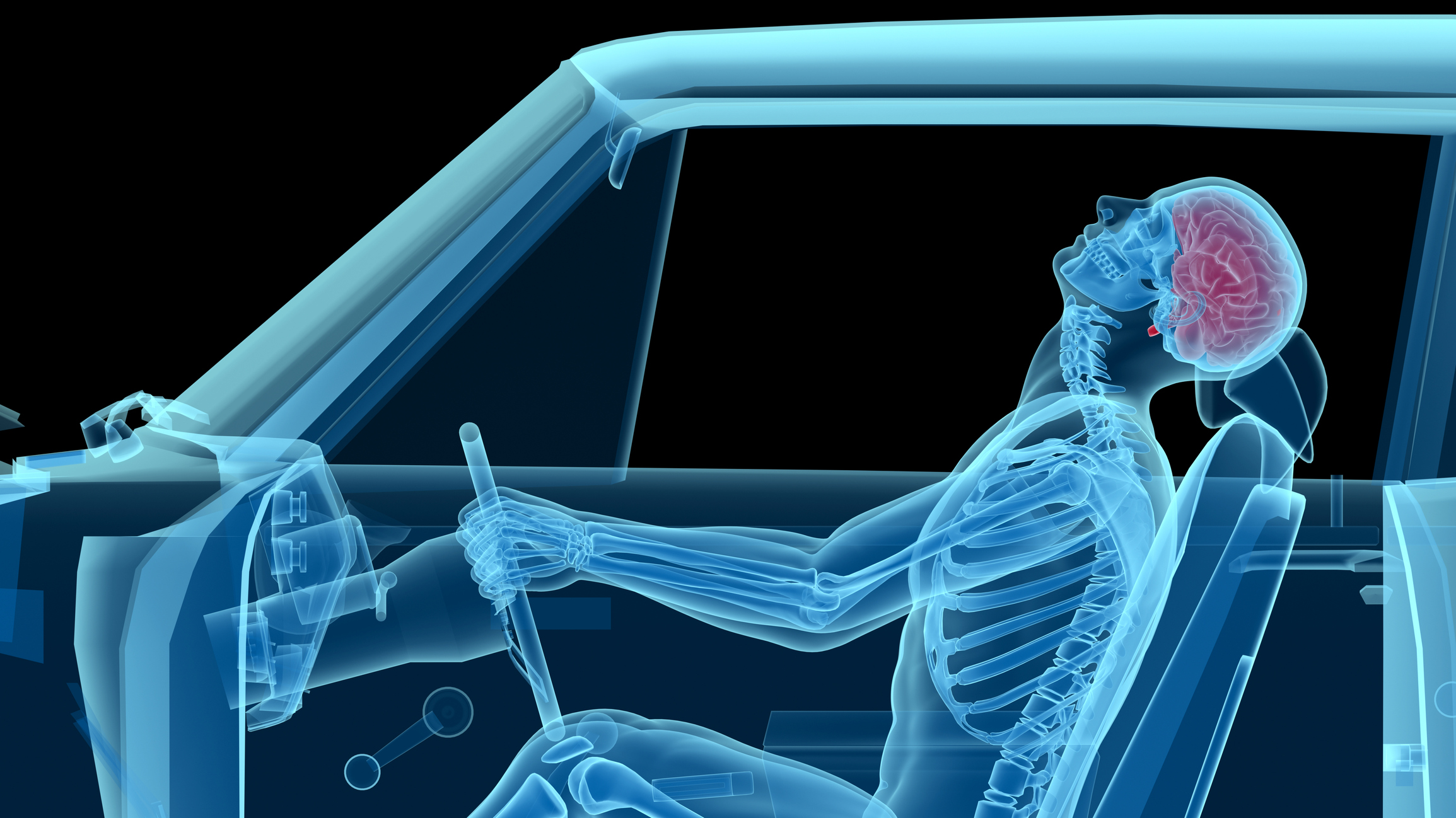 Your How To Guide To A Brain And Spinal Cord Injury Claim