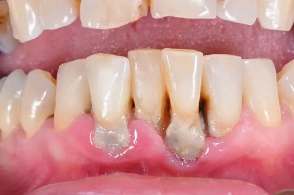thru-clothing-pictures-of-gum-oral-cancer-emo