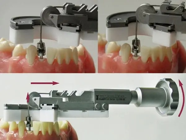 the Benex extraction system