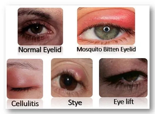 Differences between mosquito bites on eyelids and cellulitis, stye, eye lift, vs normal.