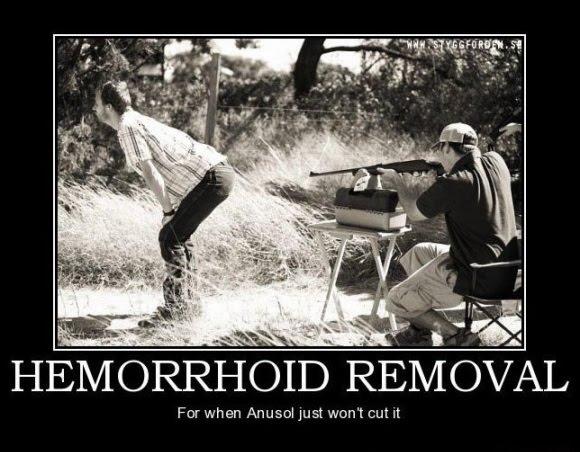 Hemorrhoid_removal