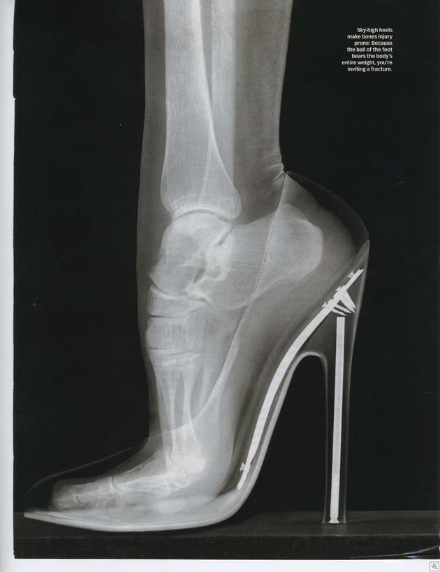 High heel trouble