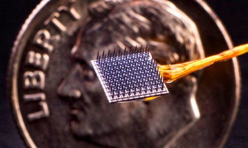 Coming-soon-A-brain-implant-to-restore-memory