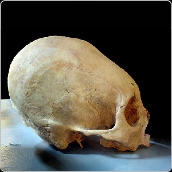 L'assurda Pratica Delle Deformazioni Craniche Artificiali