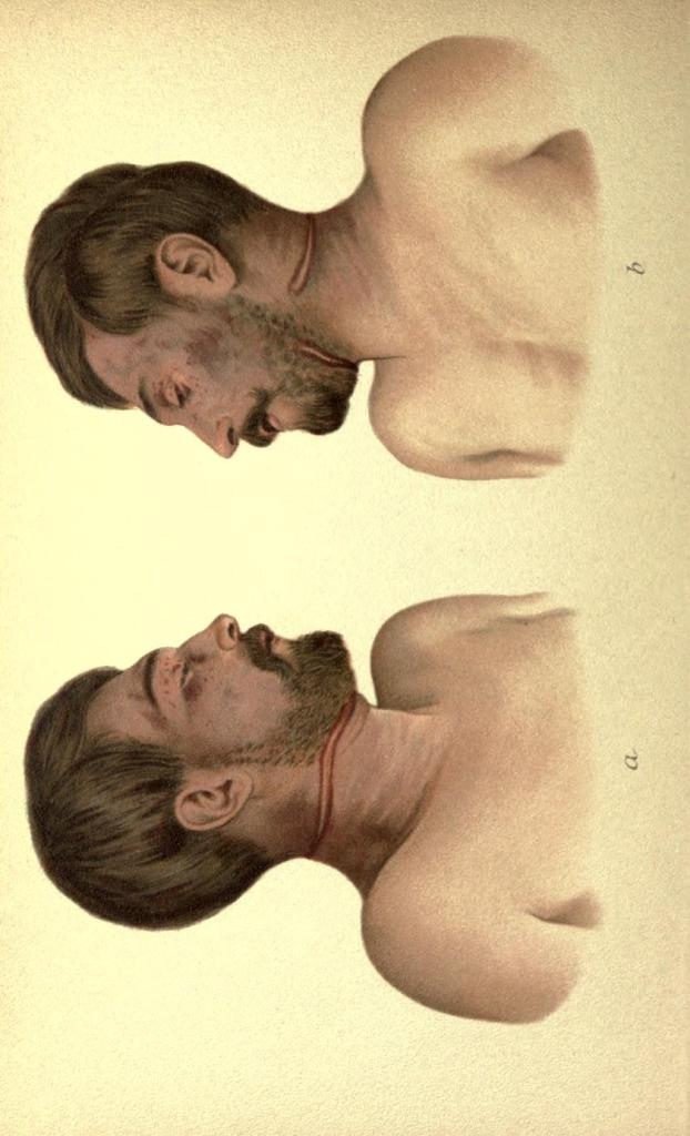 Suicidio per impiccagione con doppia corda. Posizione asimmetrica del nodo.