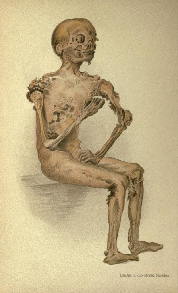Cadavere mummificato di suicida (scoperto 10 anni dopo la morte).