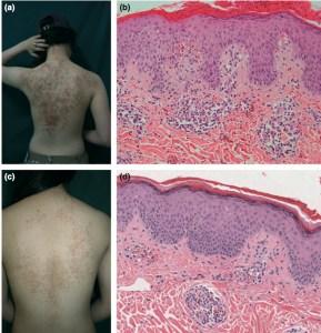 J Eur Acad Dermatol Venereol. 2012 Sep;26(9):1149-53Oh YJ, Lee MH.