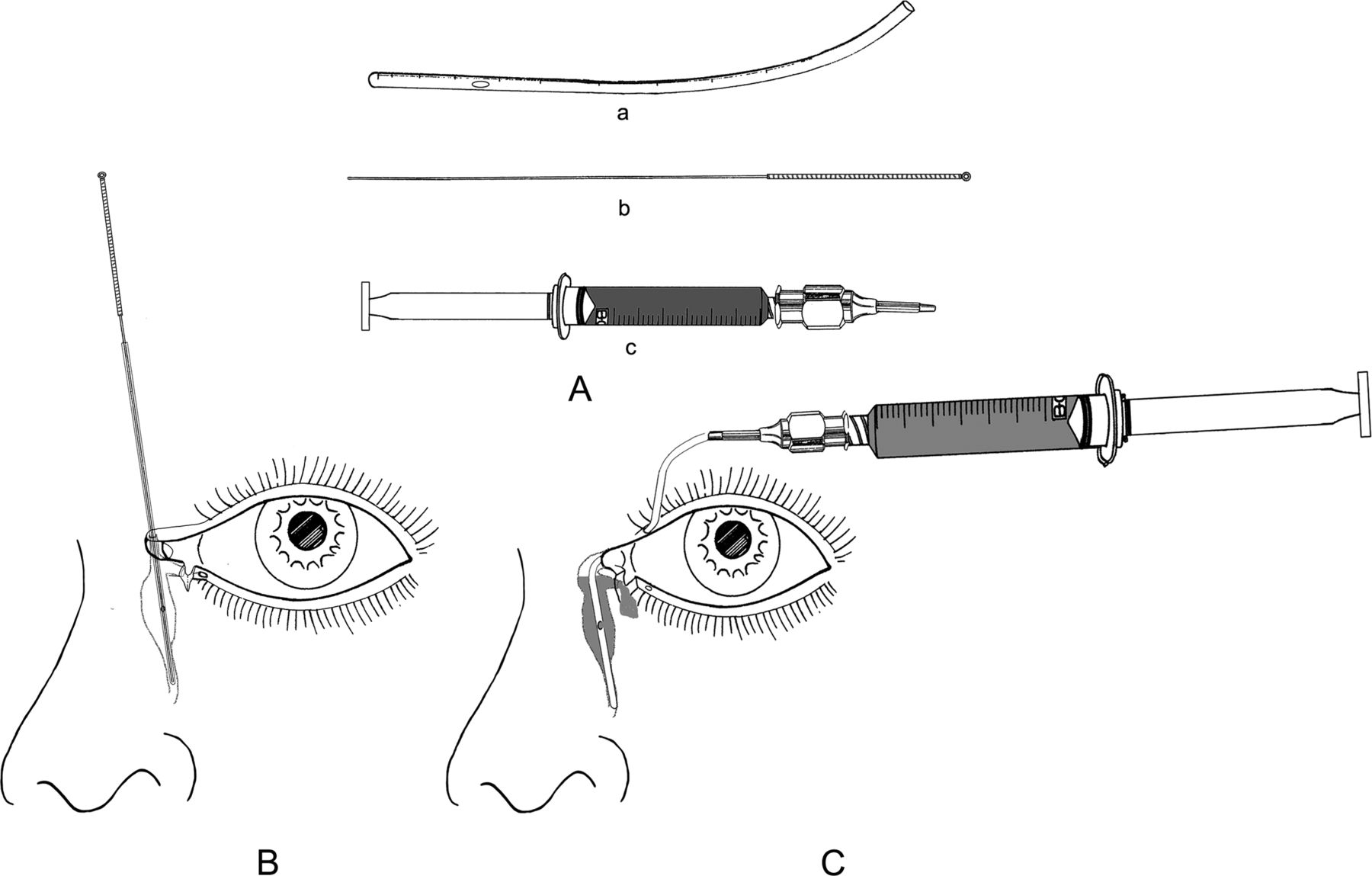 A Novel Modified Soft Probe For Identifying The Distal Cut
