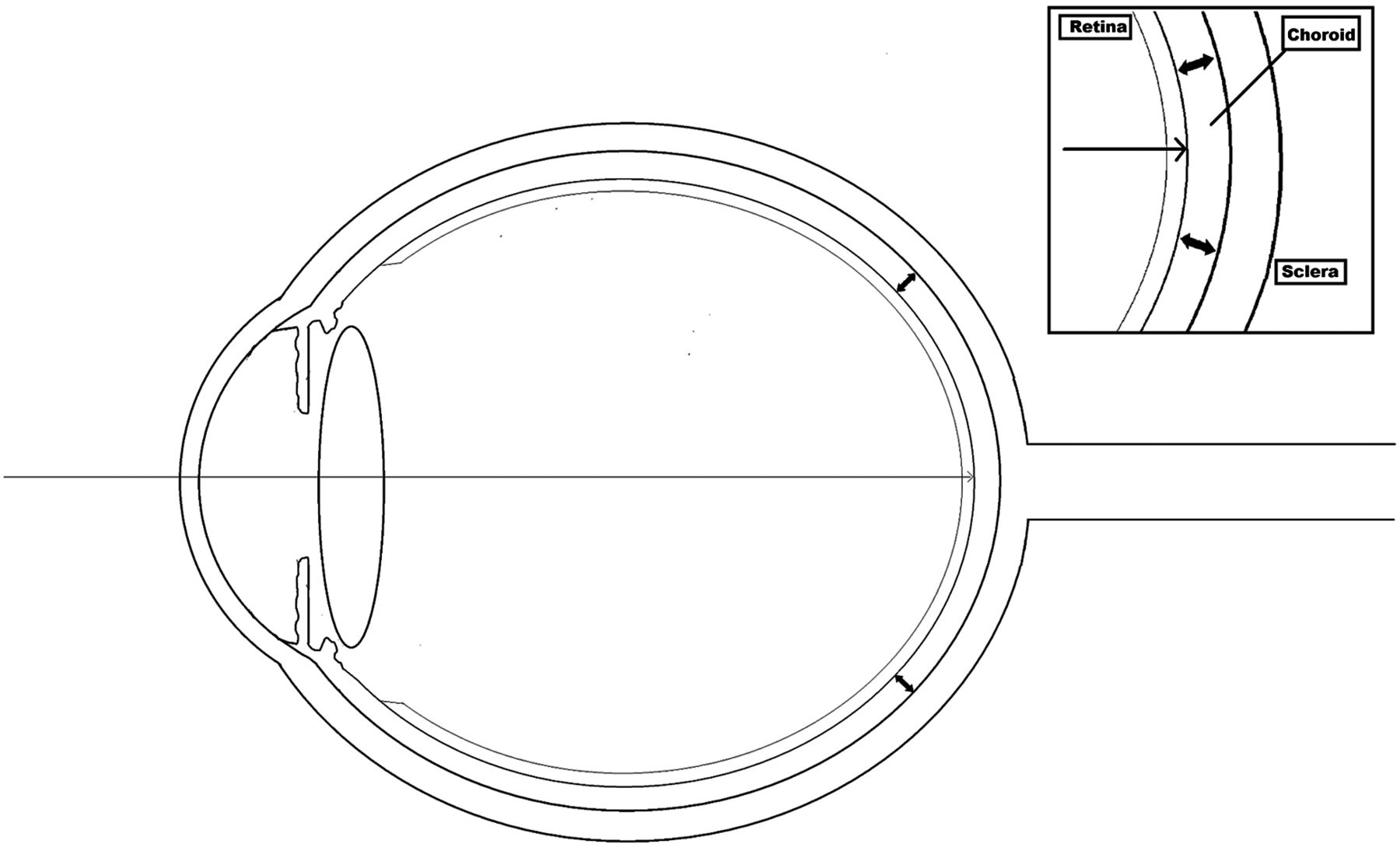 Change In Choroidal Thickness And Axial Length With Change