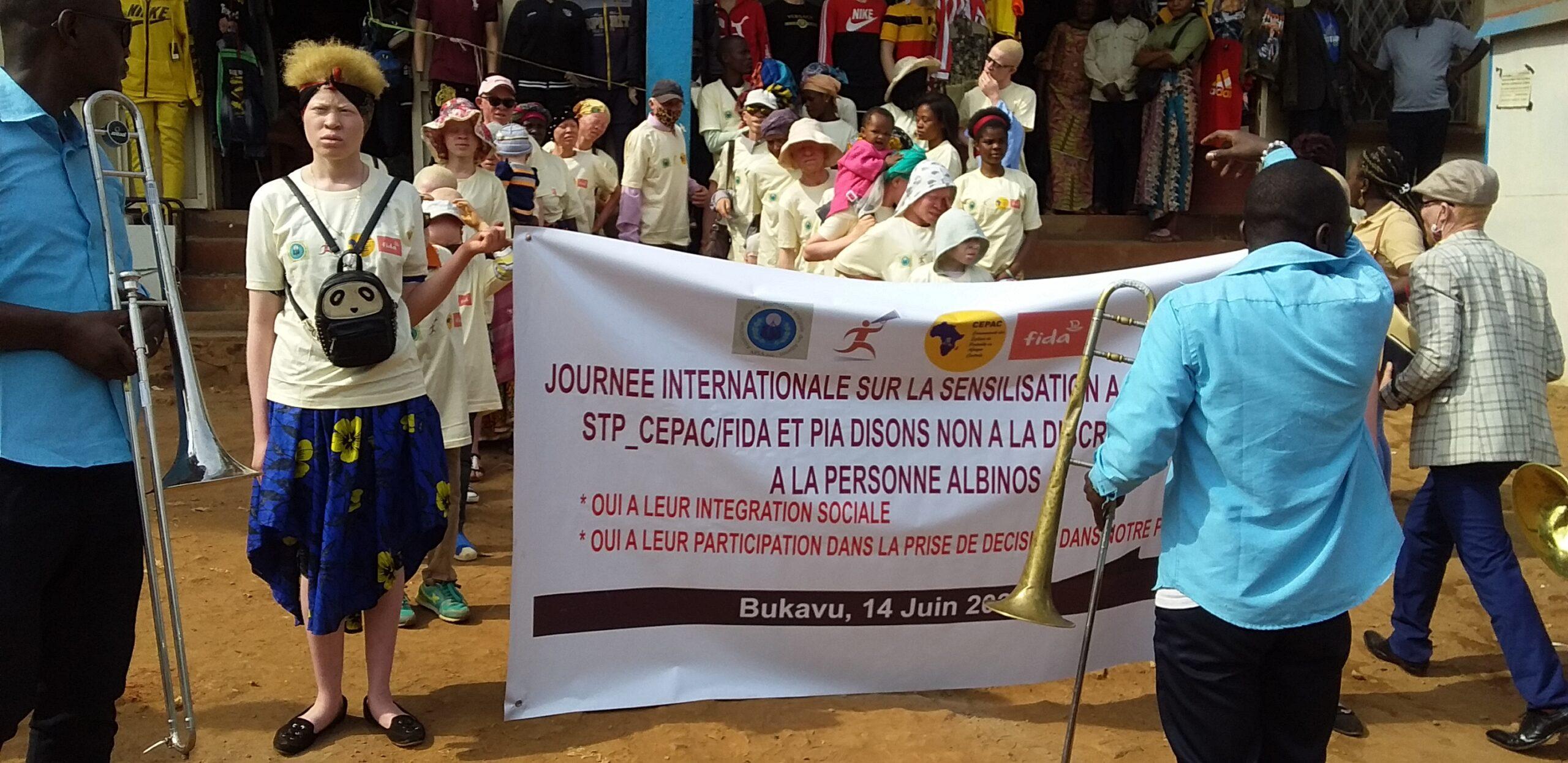 Sud-kivu : 29 albinos tués et 14 tombes profanées depuis 2010.