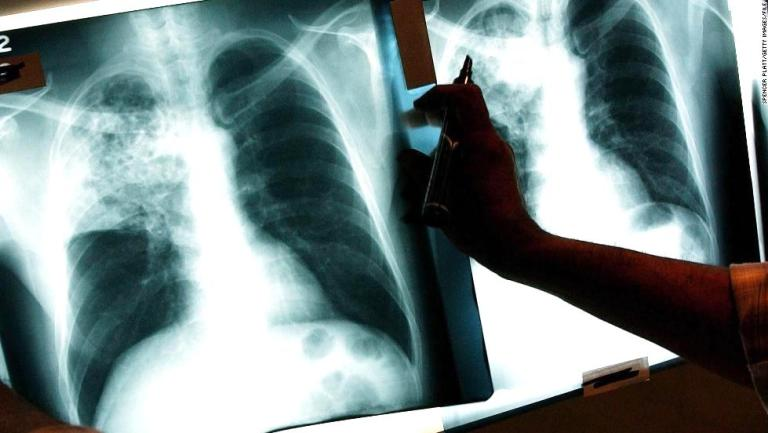 tuberculosis, BK Reader, NYC Health Department, Fort Greene Health Center, Mycobacterium tuberculosis, Fort Greene Chest Center, latent TB, active TB, cough, chest pain, fever, chills, appetite loss,