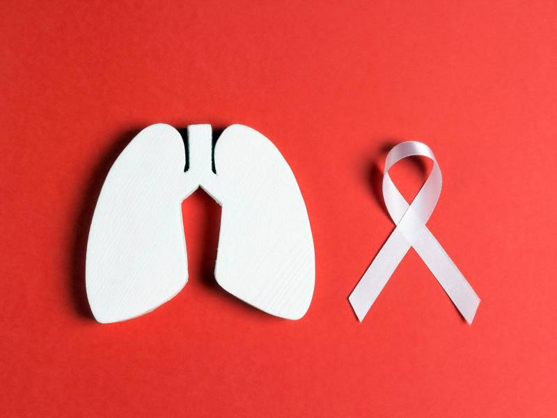 lung cancer, cancer therapy, cancer treatment