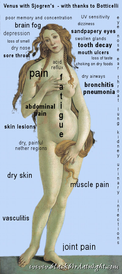 Venus with Sjogren's Syndrome