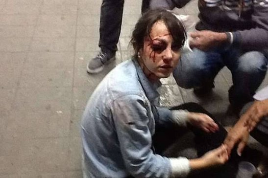 Photo of journalist Giuliana Vallone of the Folha de S. Paulo newspaper after being hit with a rubber bullet by Military Police; the image also outraged protestors