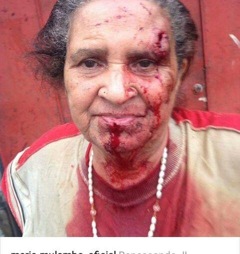 Idosa é agredida a pedradas e família denuncia intolerância religiosa em Nova Iguaçu