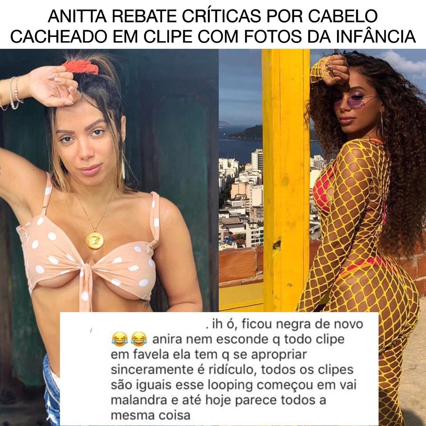 Singer Anitta is accused of Cultural Appropriation | Black Brazil