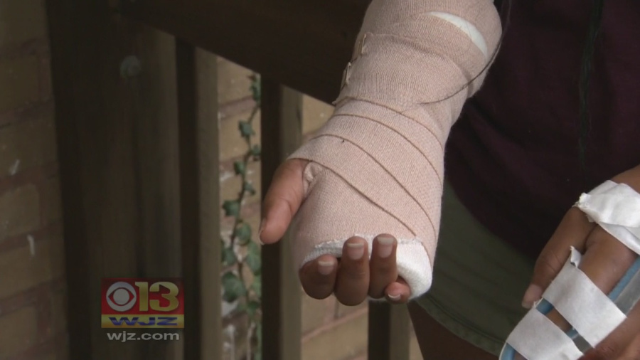 A Baltimore girl describes her injuries after being beaten with a bat by a group of teens.