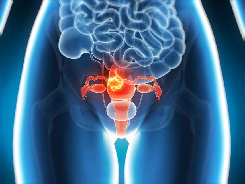 3 Herbs To Detox Your Uterus | BlackDoctor