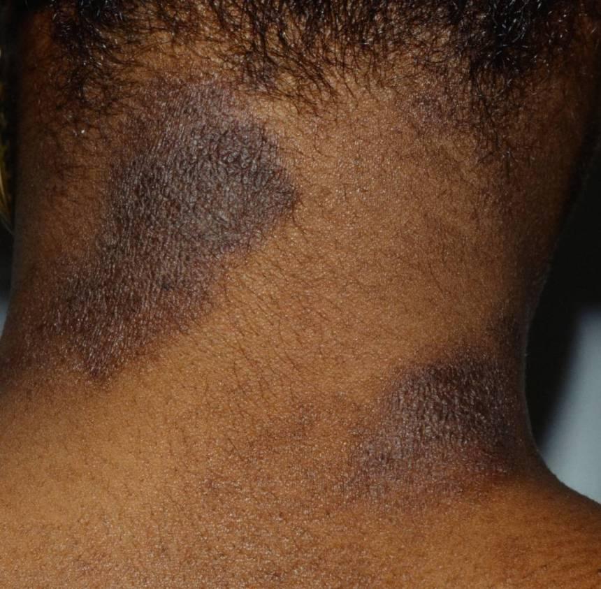 10 Most Common Skin Rashes On Black Skin | BlackDoctor