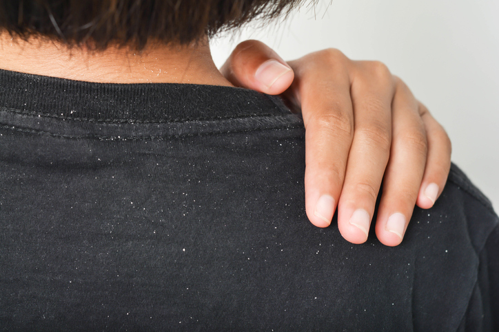 Your White Flakes May Not Be Dandruff | BlackDoctor