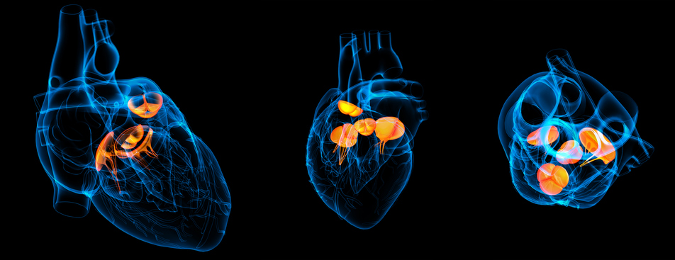 Heart Valve Disease: What We Don't Know is Killing Us