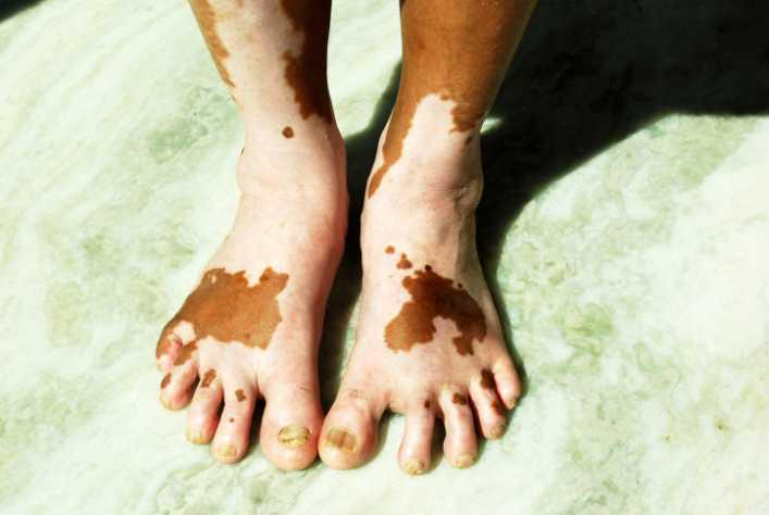 african american vitiligo