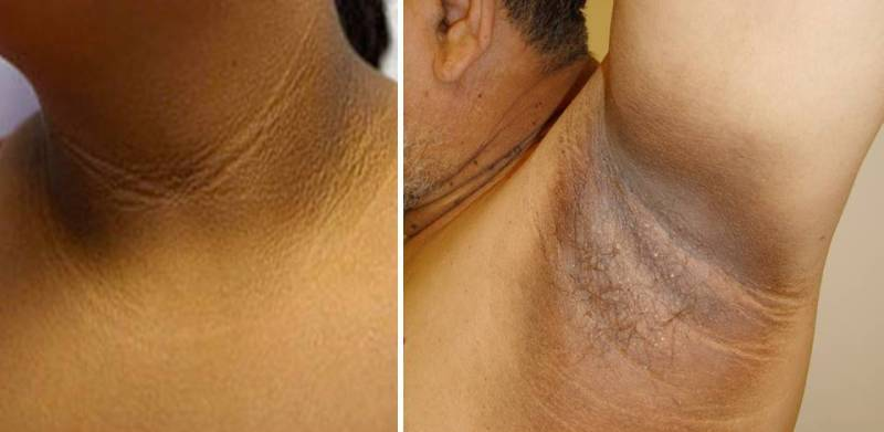 Acanthosis Nigricans Treatment  Blackdoctor-6783
