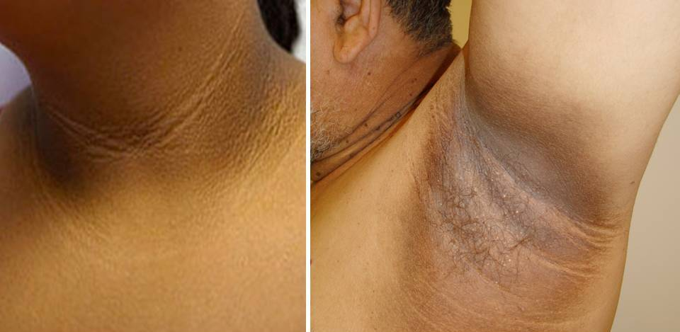 Our Skin Is No Different. Many Overweight African Americans Have Dark Spots  ...