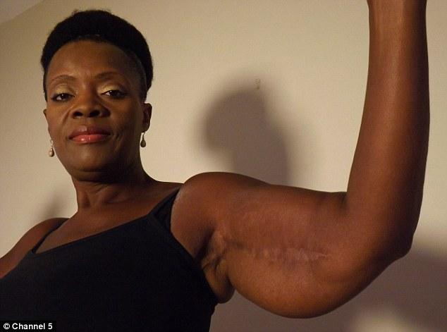 flabby arm surgery