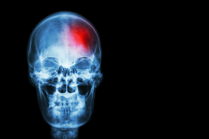 Stroke ( Cerebrovascular accident ) . film x-ray skull of human with red area ( Medical , Science and Healthcare concept and background )