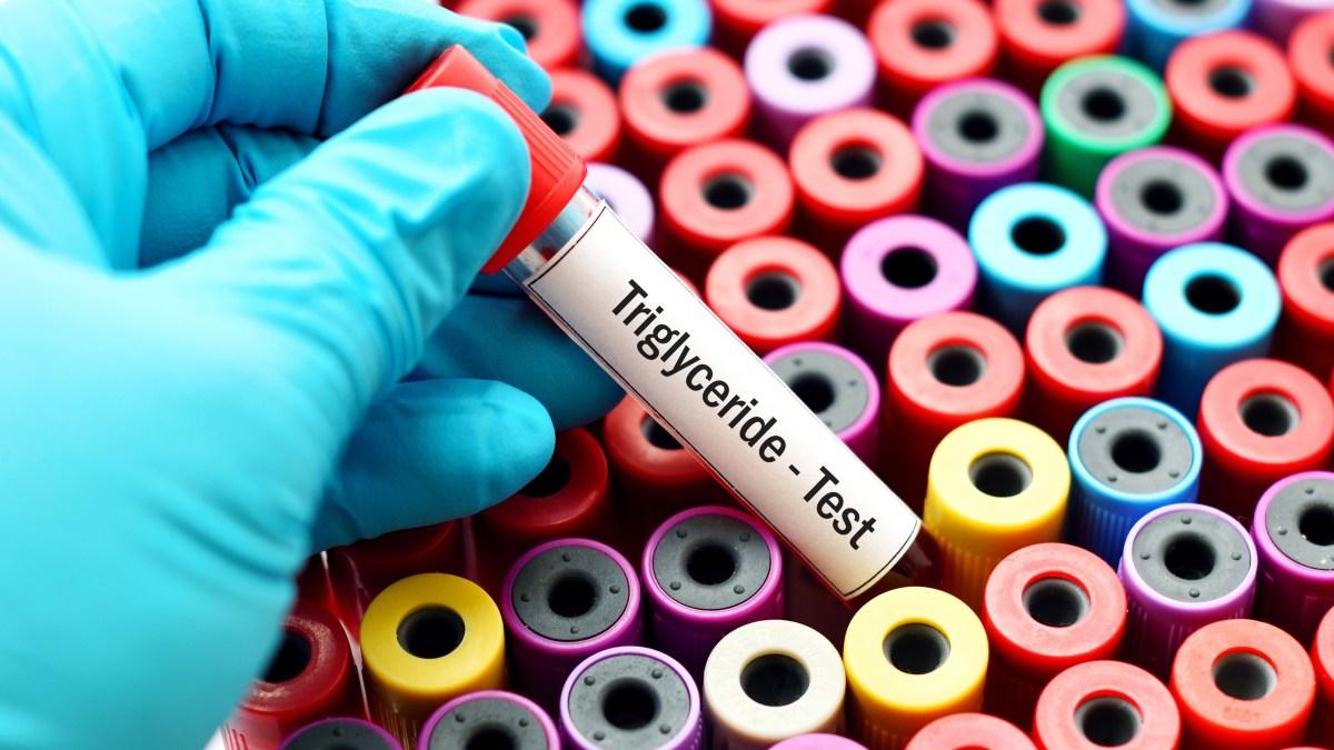 Black Gram and Triglycerides