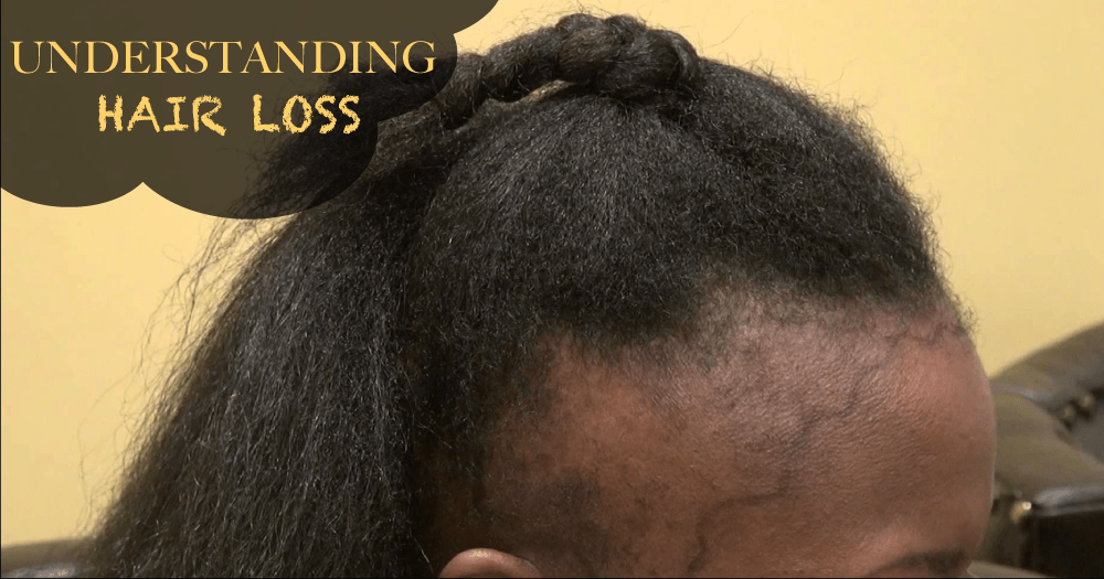 12 Reasons Why You May Be Experiencing Mild To Severe Hair