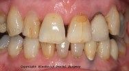 Case 18 - Before treatment