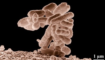 Treatments for Biofilm Infections - Bladder Help