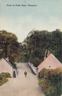 1910 One legged man at Pathfoot