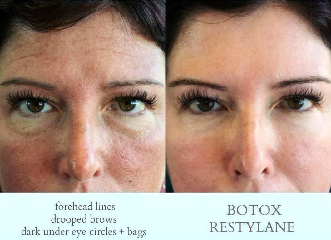 Botox Bags Under Eyes