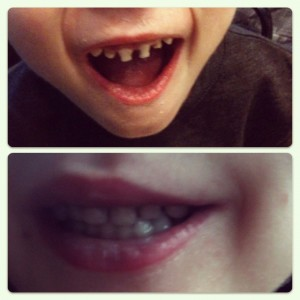 Parker's smile before and after