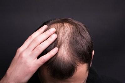 מחלת הצליאק ונשירת שיער