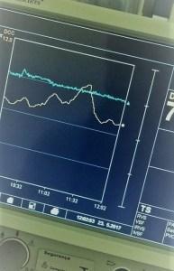 Pitfalls do dia-a-dia da UTI: Swan-Ganz descalibrado!