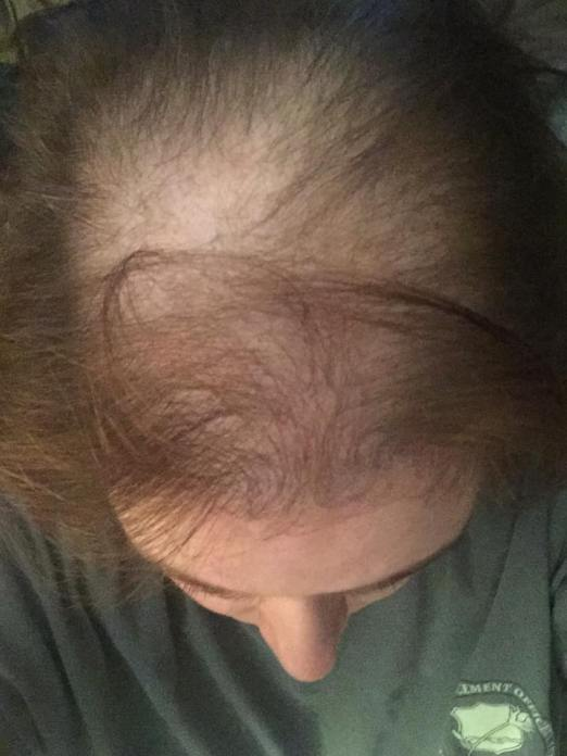 Explaining My Hair Loss to My Daughter - alopecia and female pattern baldness due to chemotherapy