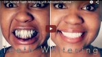 Natural Teeth Whitening Using Activated Charcoal