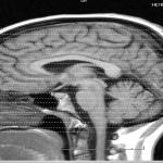 le cerveau pousse le gain, le bruit est amplifié