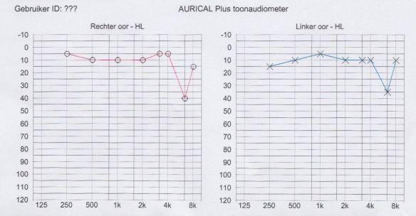 o-test-auditif