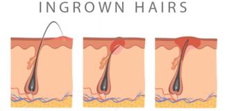 How long do ingrown hairs last