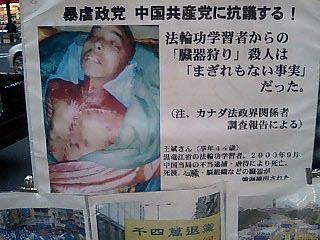 「臓器売買」の画像検索結果