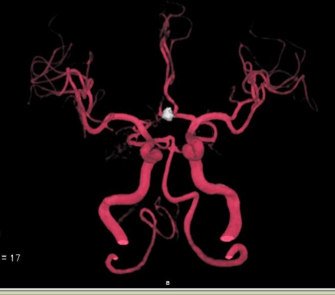 瘤内コイル1