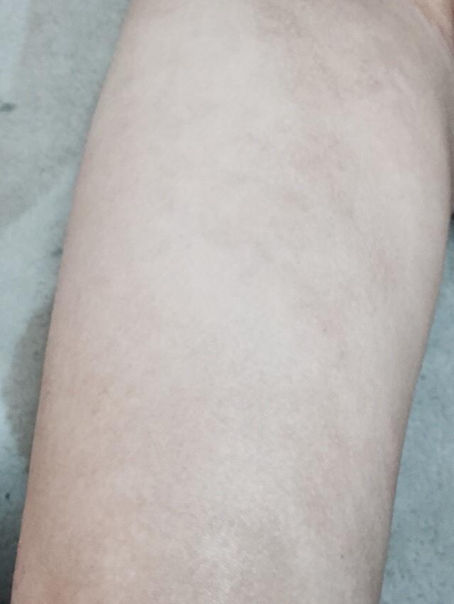 右大腿前面4