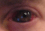 Bokor's eye