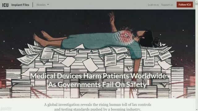 体内に埋め込む医療機器の健康被害 調査結果を公表 ICIJ