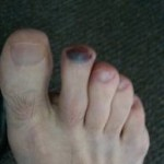 2nd Toe affected by Black Toe